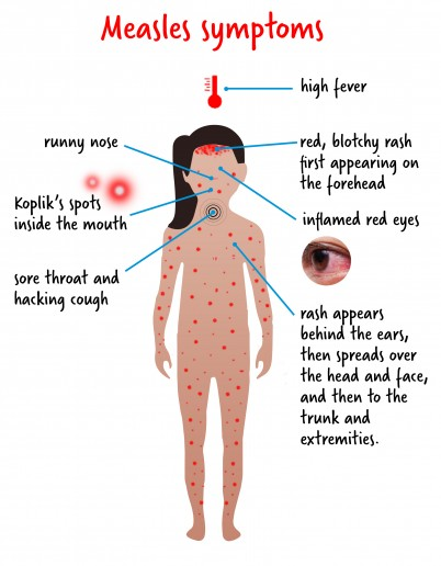 infographic of measles symptoms